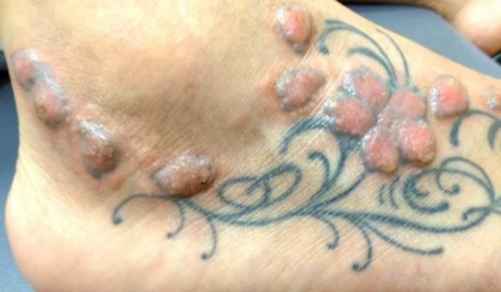 What Is Tattoo Ink Poisoning